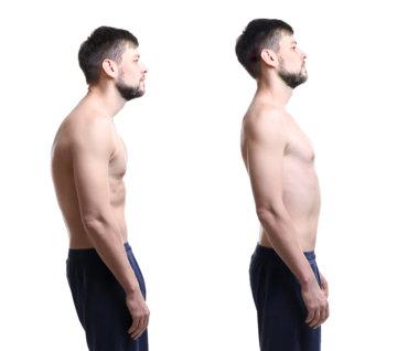 姿勢改善の画像