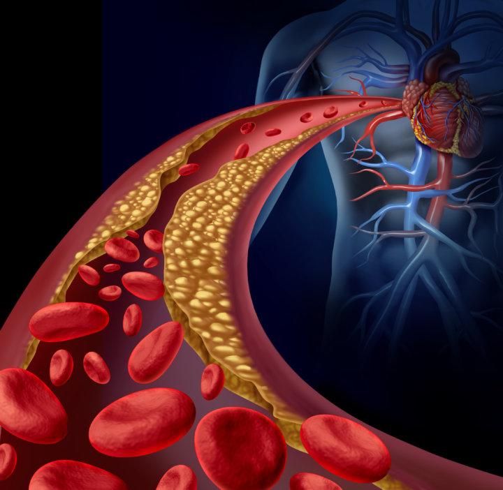 生活習慣病と動脈硬化(ダイエット専門曙橋パーソナルトレーニング ジム)の画像
